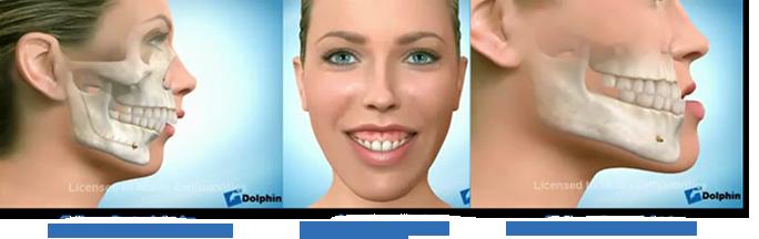 Chirurgia-ortognatica_II-classe_dentoscheletrica