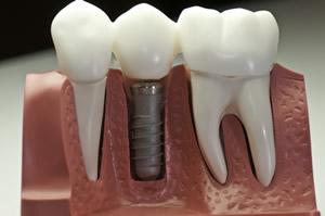 implantologia-impianti-dentali-in-titanio-endodonzia-corona-in-ceramica-zirconio