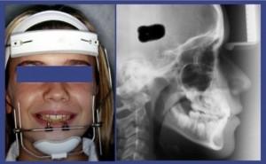 l'ortodonzia-per-i-bambini
