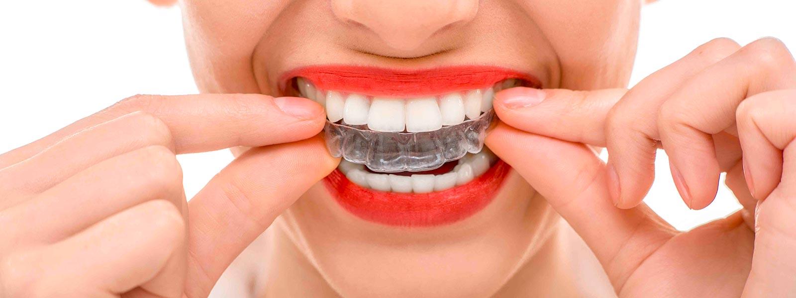 Ristabilire la corretta funziona della bocca