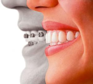 ortodonzia_invisibile