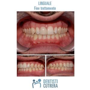caso clinico trattamento linguale fine trattamento