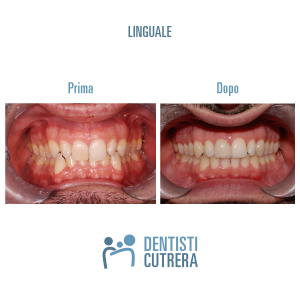 caso clinico trattamento linguale prima dopo